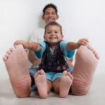 Un venezolano tiene los pies más grandes del mundo